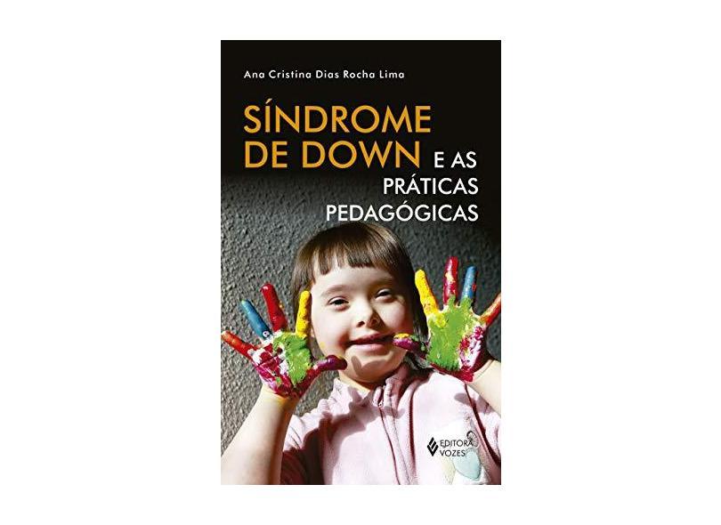 Síndrome de Down e as Práticas Pedagógicas - Ana Cristina Dias Rocha Lima - 9788532651891