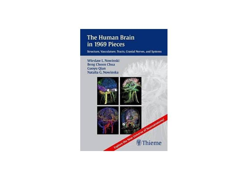 THE HUMAN BRAIN IN 1969 PIECES DVD-ROM - Nowinski  Dvd-rom - 9781604067408