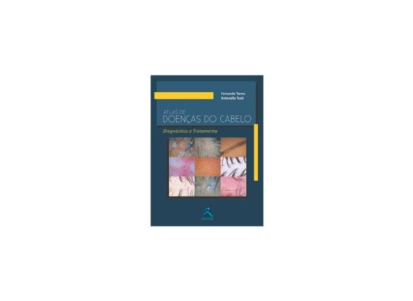 Atlas De Doenças Do Cabelo. Diagnostico E Tratamento - Capa Comum - 9788537204979