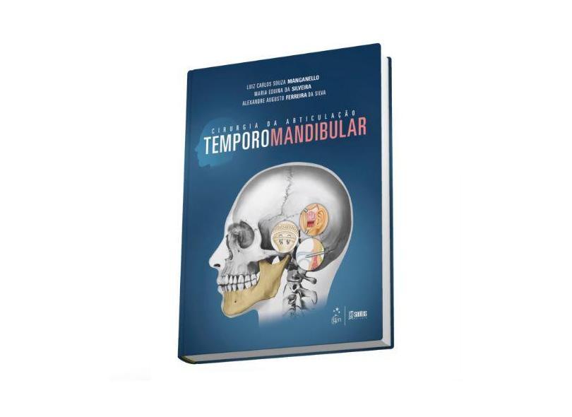 Cirurgia da Articulação Temporomandibular - Manganello, Luiz Carlos Souza; Silva, Alexandre Augusto Ferreira Da; Silveira, Maria Eduina Da - 9788541204156