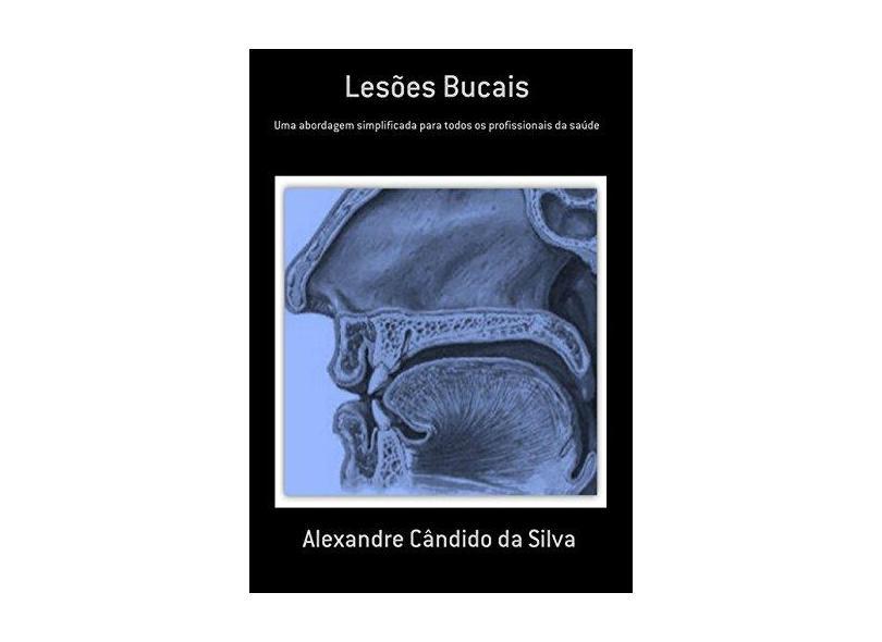 Lesões Bucais - Alexandre Cândido Da Silva - 9788556973016