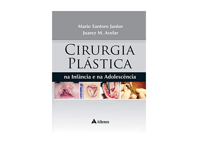 CIRURGIA PLASTICA NA INFANCIA E NA ADOLESCENCIA - Mario Santoro Junior - 9788538808770