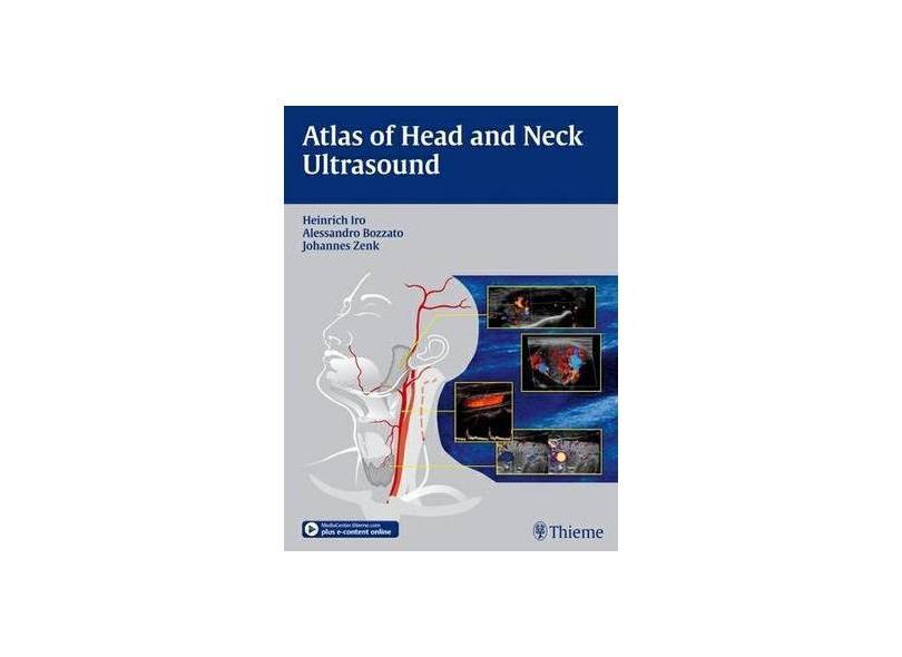 ATLAS OF HEAD AND NECK ULTRASOUND - Iro - 9783131603517
