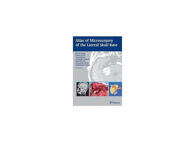COLOR ATLAS OF MICROSURGERY LATERAL SKULL BASE - Sanna - 9781588900111