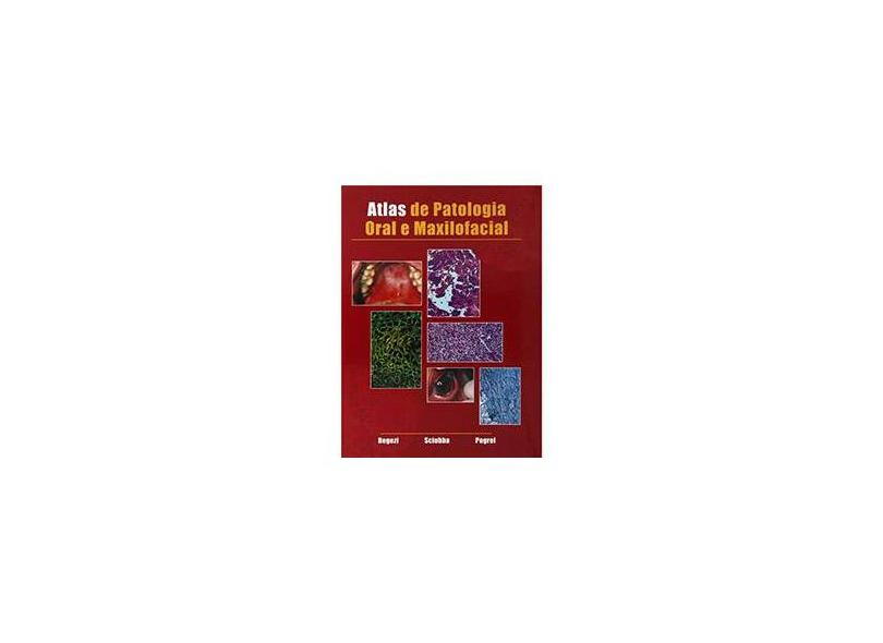Atlas De Patologia Oral E Maxilofacial - Capa Comum - 9788527706841