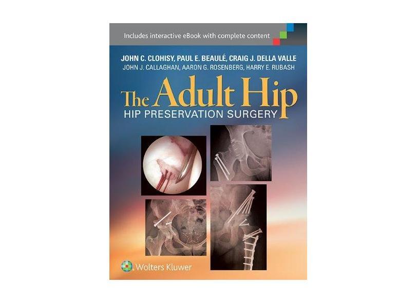 THE ADULT HIP : HIP PRESERVATION SURGERY - John Clohisy ,  Paul Beaule  ,  Craig Dellavalle - 9781451183931