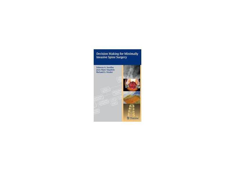 DECISION MAKING FOR MINIMALLY INVASIVE SPINE - Sandhu - 9781604062663