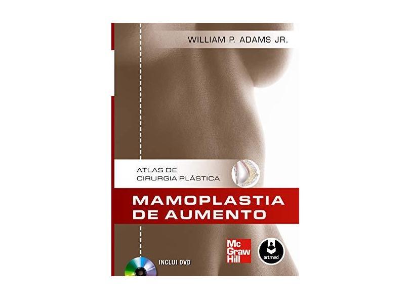 Atlas De Cirurgia Plastica. Mamoplastia De Aumento - Capa Dura - 9788580551983