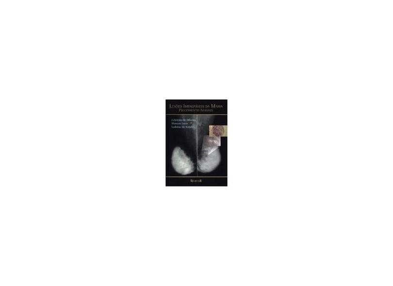Lesoes Impalpaveis Da Mama - Procedimentos Invasivos - Celestino - 9788573094077