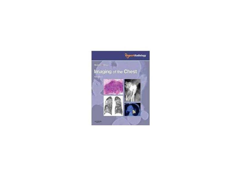 Imaging of the Chest, 2-Volume Set: Expert Radiology Series - Nestor L. Muller - 9781416040484