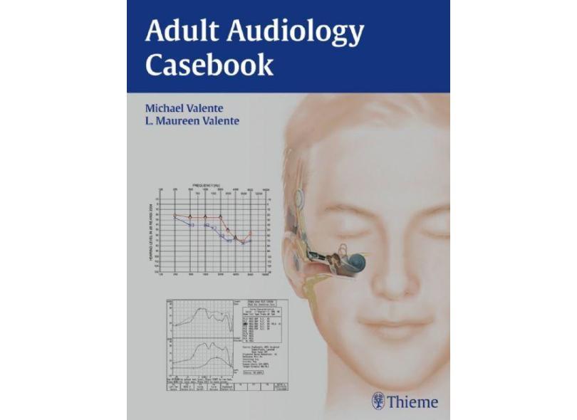 ADULT AUDIOLOGY CASEBOOK - Valente / Valente - 9781604068504