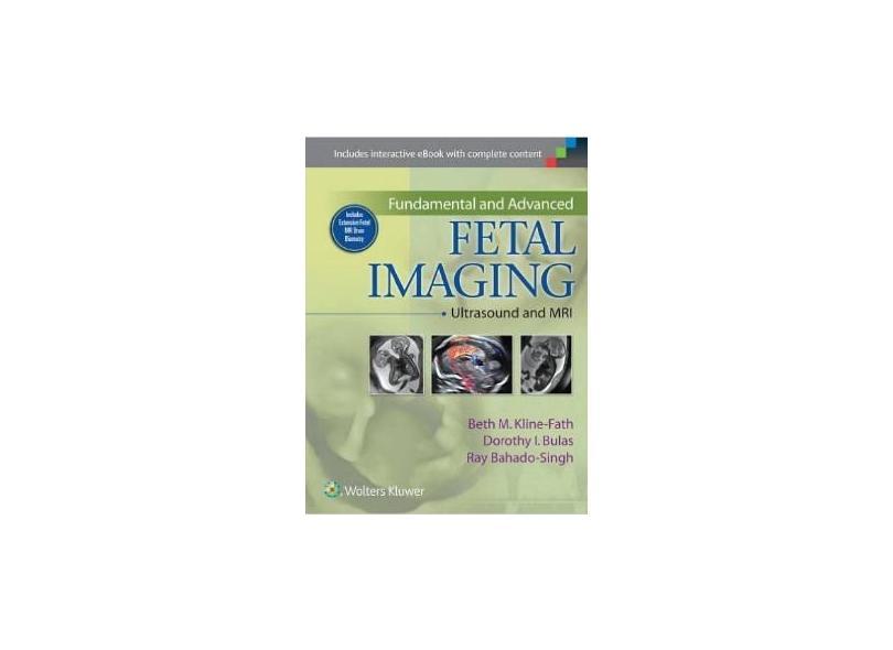 FUNDAMENTAL AND ADVANCED FETAL IMAGING - Beth Kline-fath ,  Ray Bahado-singh ,  Dorothy Bulas - 9781451175837