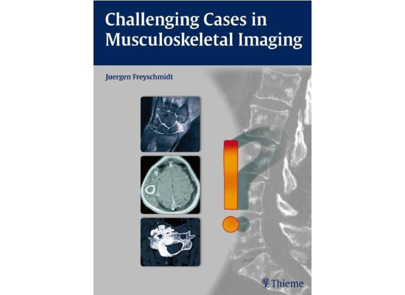 CHALLENGING CASES IN MUSCULOSKELETAL IMAGING - Freyschmidt - 9783131764010