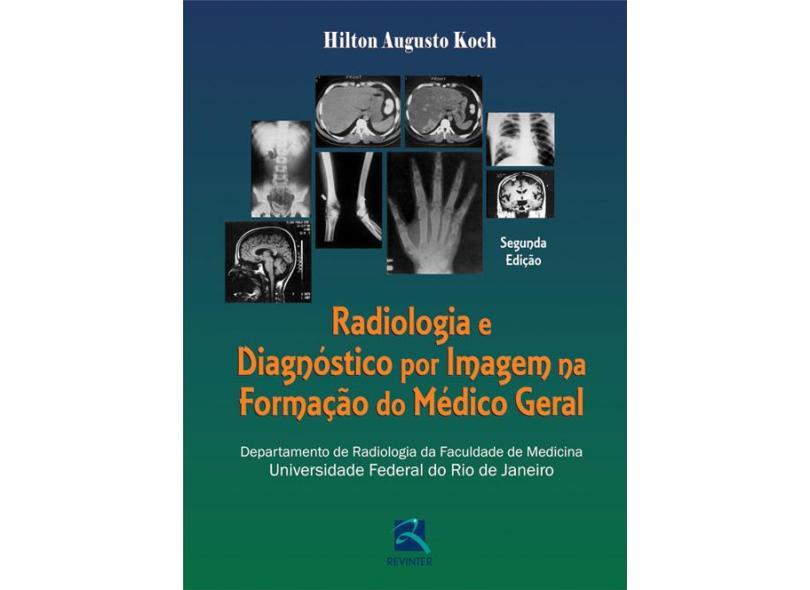 Radiologia E Diagnostico Por Imagem Na Formação Do Medico Geral - Capa Comum - 9788537204221