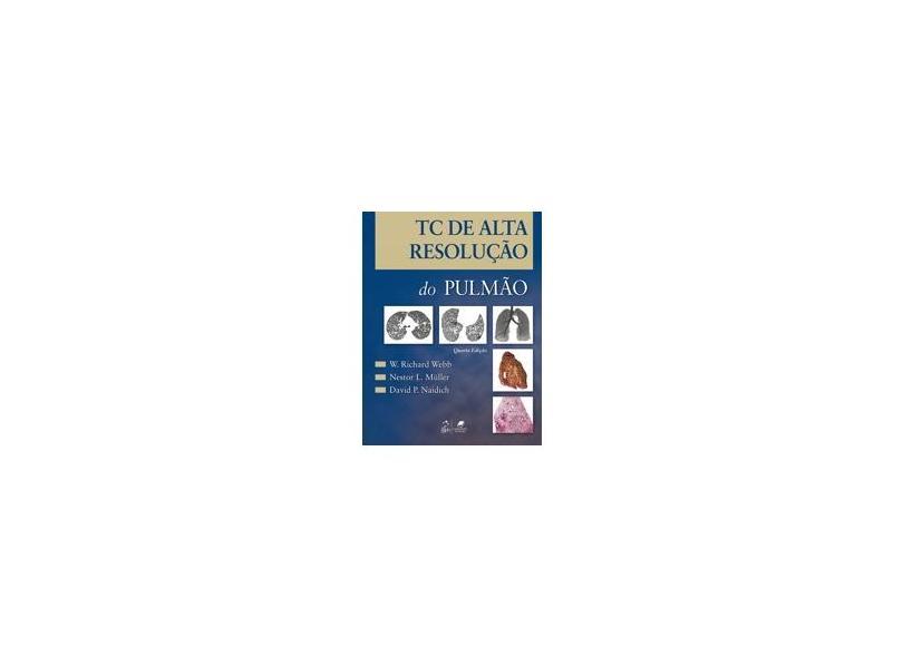 Tc de Alta Resolução do Pulmão - 4ª Ed. 2010 - Webb, W. Richard; Naidich, David P.; Müller, Nestor L. - 9788527716383