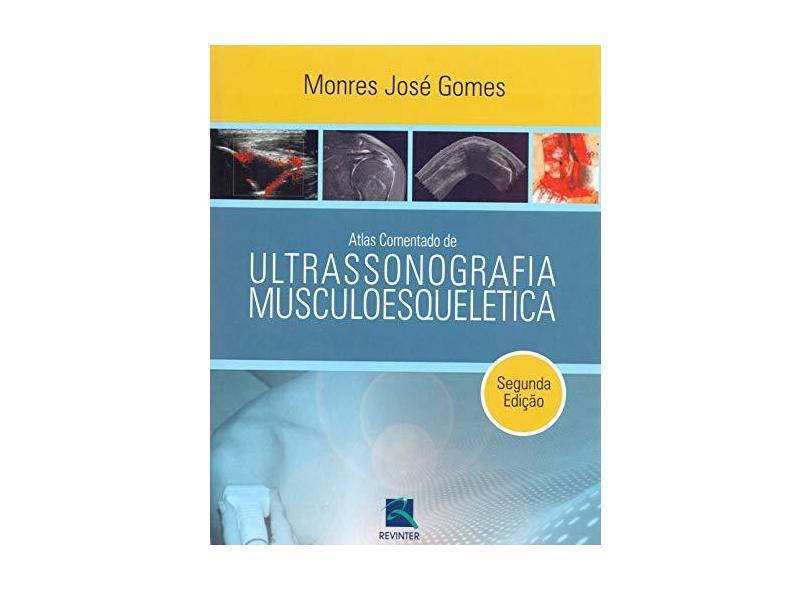 Atlas Comentado De Ultrassonografia Musculoesquele - Capa Comum - 9788537203859