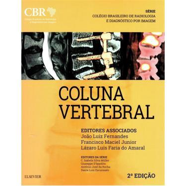 CBR - COLUNA - Joao Luiz Fernandes Francisco Maciel Junior Lazaro Luis Faria Do Amaral - 9788535288308