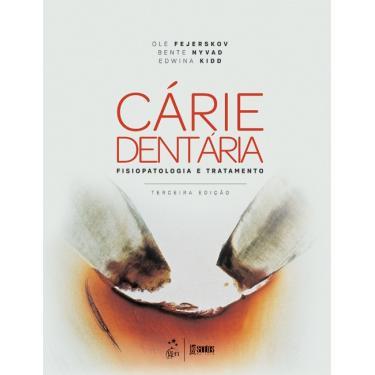 Cárie Dentaria. Fisiopatologia e Tratamento - Ole Fejerskov - 9788527730730