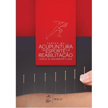 Acupuntura no Esporte e na Reabilitação: Técnica de Agulhamento a Seco - Yun-tao Ma - 9788527728744