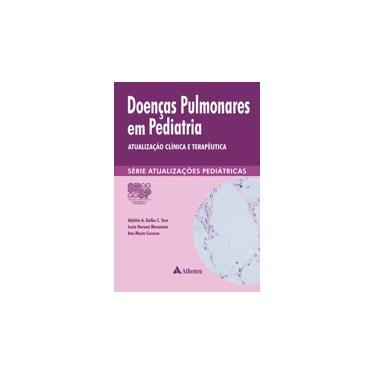 Doenças Pulmonares em Pediatria: Atualização Clínica e Terapêutica - Série Atualizações Pediátricas - Spsp - 9788538804673