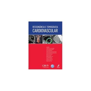 Ressonância E Tomografia Cardiovascular - Varios Autores - 9788520435281