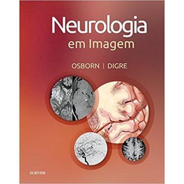Neurologia em Imagem - Anne G. Osborn - 9788535288360
