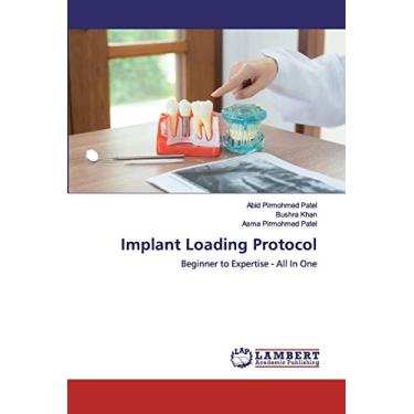Implant Loading Protocol
