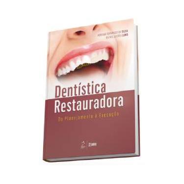 Dentística Restauradora - do Planejamento À Execução - Lund, Rafael Guerra; Silva, Adriana Fernandes Da - 9788527728638