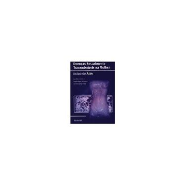 Doenças Sexualmente Transmissiveis Na Mulher. Incluindo AIDS - Capa Comum - 9788573093070