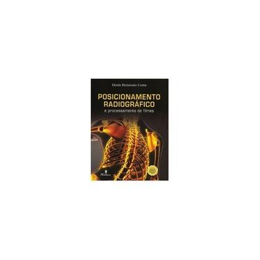 Posicionamento Radiográfico e Processamento de Filmes - Denis Honorato Costa - 9788581160771