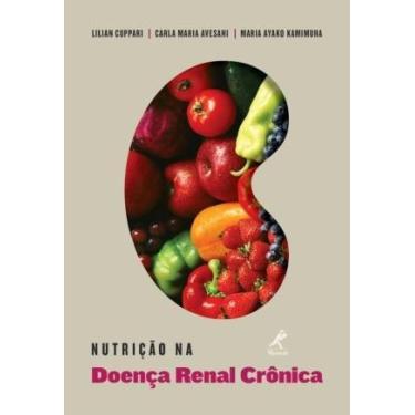 Nutrição Na Doença Renal Crônica - Lilian Cuppari - 9788520431368