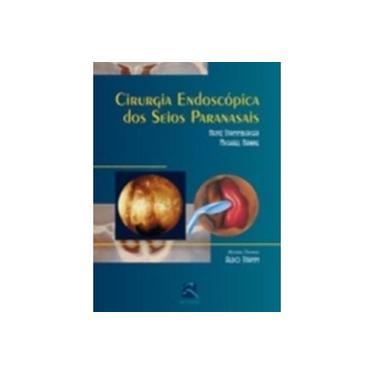 Cirurgia Endoscopica Dos Seios Paranasais - Capa Comum - 9788573096477